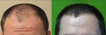 Dr U Hair Clinica