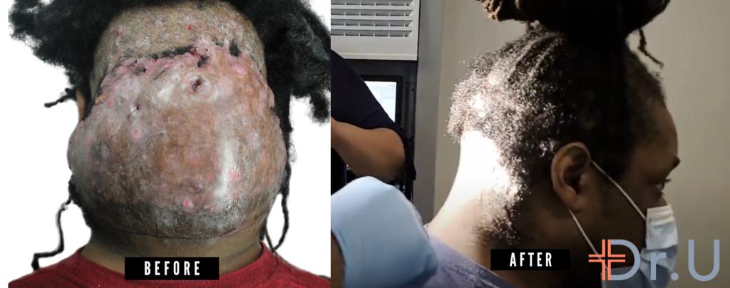 golpe de AKN de 19 años - antes y después