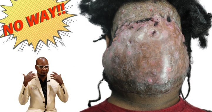 Paciente con acné Keloidalis Nuchae con gran golpe vio a un médico para eliminarlo bien